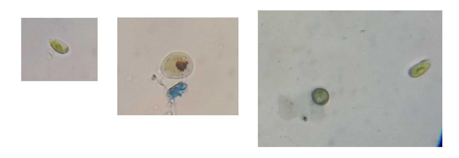 Micro organismes dans eau croupie